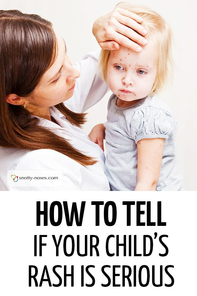 An unwell child with a rash being comforted by their mother. #childhealth #unwellchild #unwellkid #babyrash #childhoodrashes