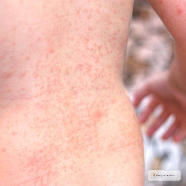 Prickly Heat Rash in Children by a pediatrician