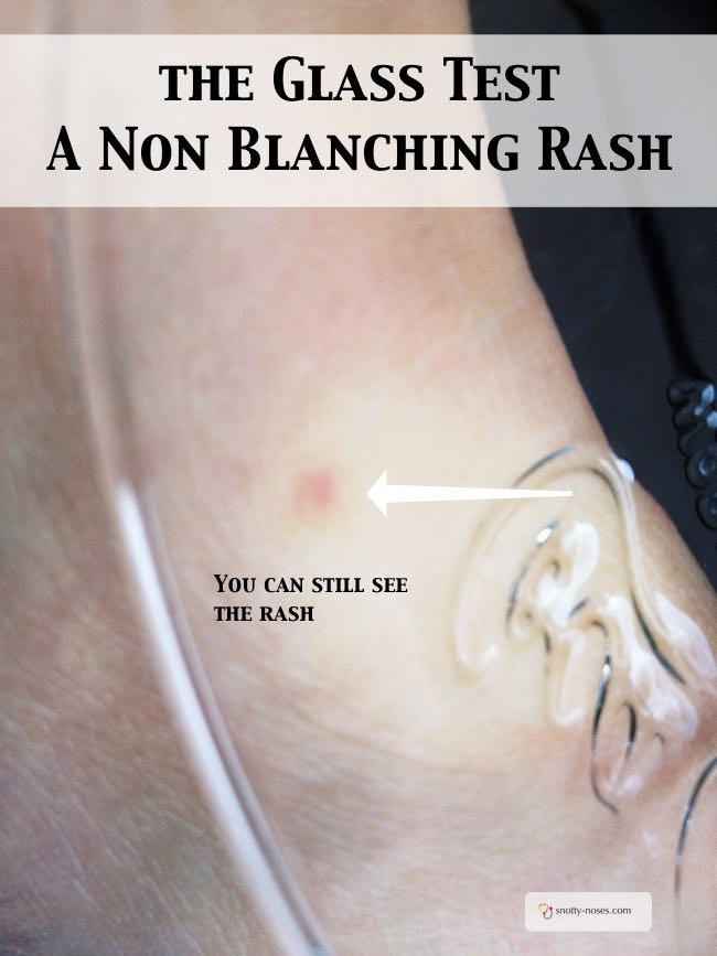 How can you tell if a rash is blanching or not? Do the glass Test. You can still see a blanching rash when you press a glass over it.
