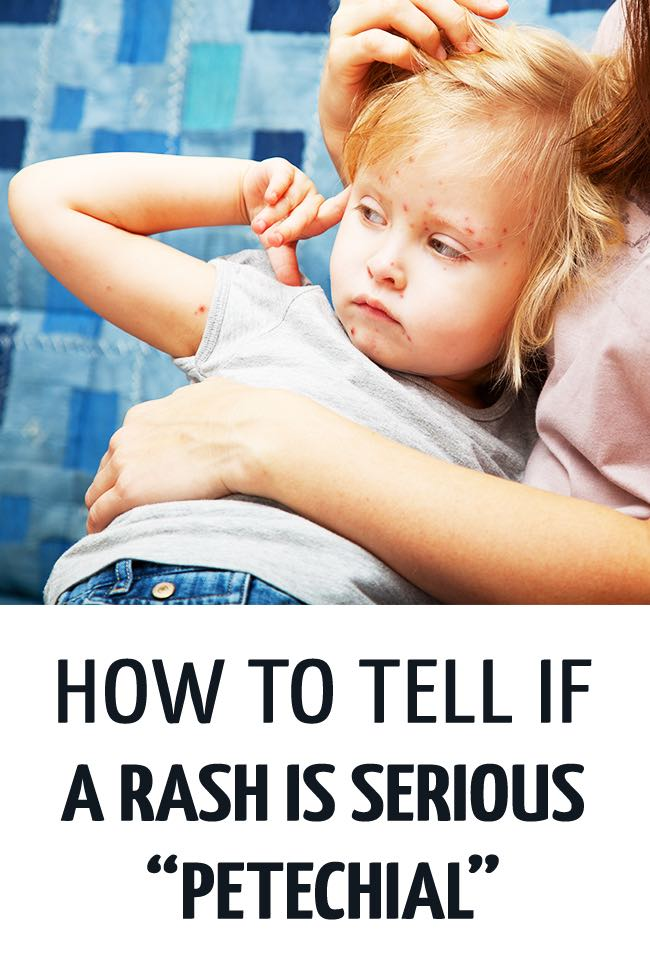 An unwell girl with a rash all over her, being held by her mother who isn't sure if the rash is serious or not. #childhealth #illchild #rashkids #rash #sickchild #parenting