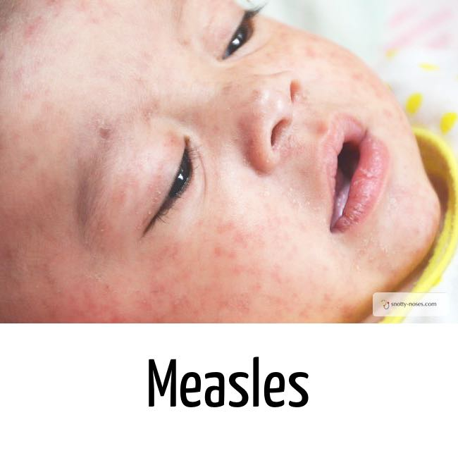Measles rash on a child's face. This is a typical maculopapular rash of measles by Dr Orlena Kerek