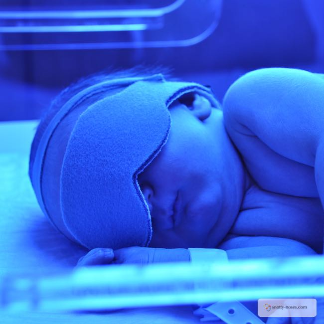 A newborn with neonatal jaundice receiving phototherapy