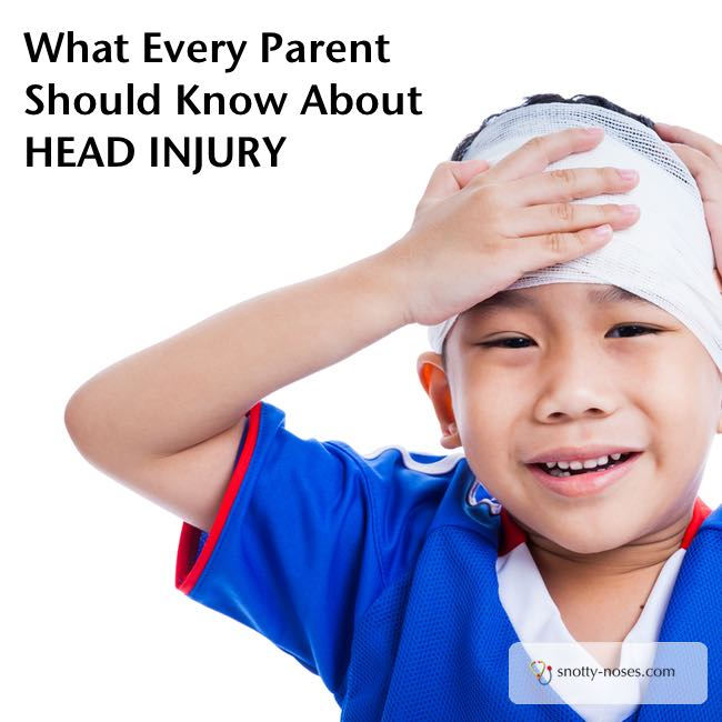 Bump on Head. Head Injury in Children by a pediatrician