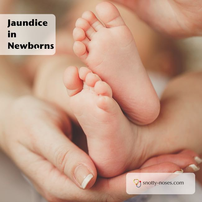 Jaundice in Newborns. What causes jaundice and why it is important
